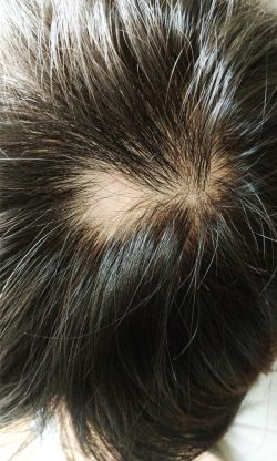 alopecia areata hair fall problem